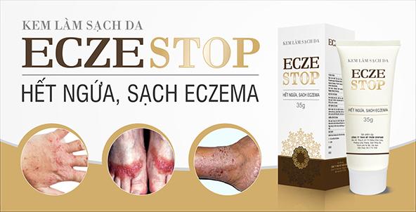 Kem Làm Sạch Da Eczestop - Hết Ngứa, Sạch Eczema 35g